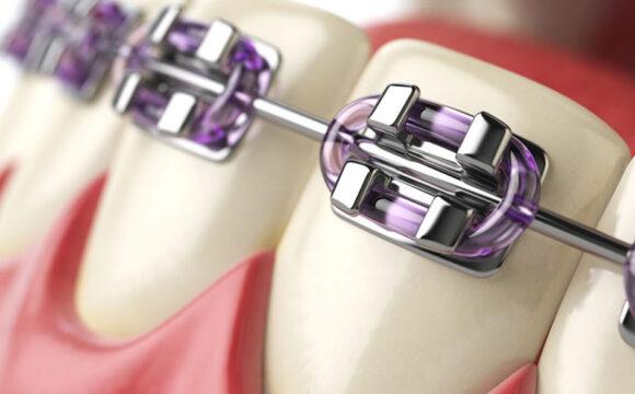 Ortodoncia e Invisalign®