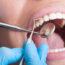 Las personas con periodontitis registran hasta un 60% más de riesgo de tener hipertensión arterial